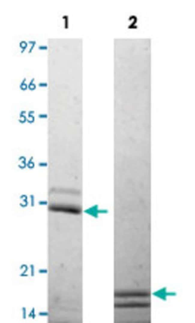 Abnova Mouse Il17a/Il17f (heterodimer) Recombinant Protein 25µg:Life