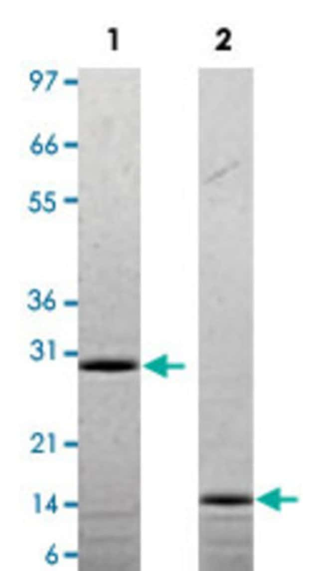 Abnova Rat Il17f Recombinant Protein 25µg:Life Sciences