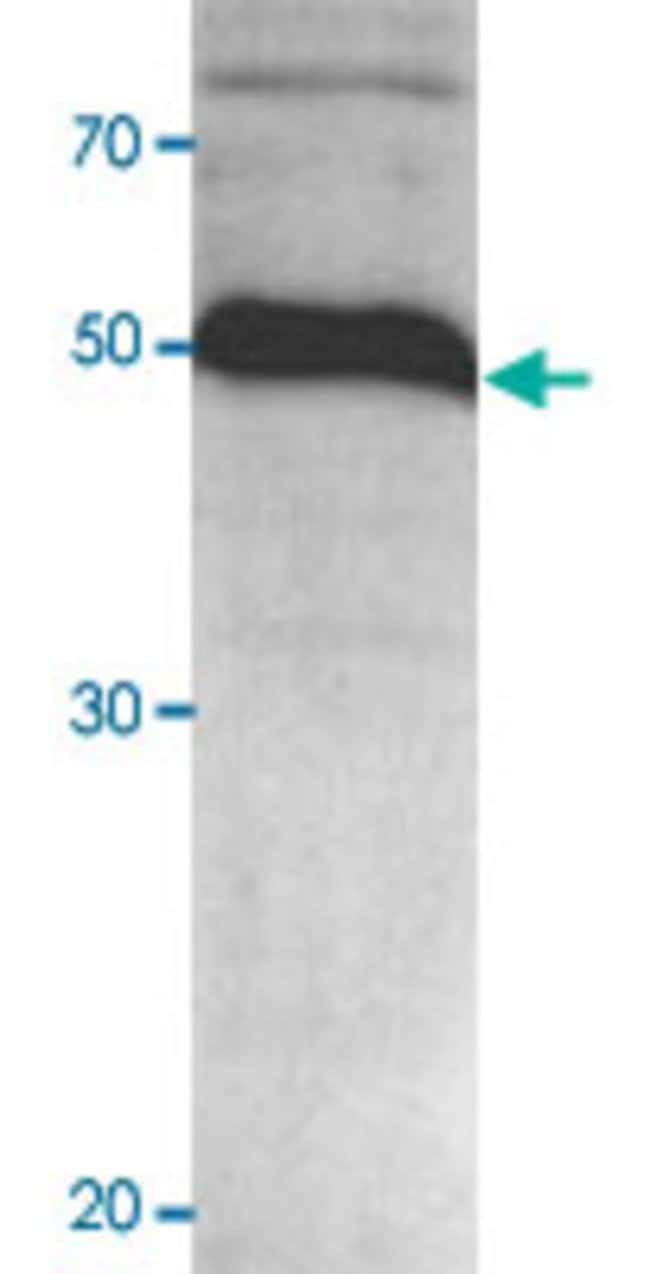 AbnovaHuman ADAMTS1 (253 a.a. - 617 a.a.) amino acids 618-968 deleted Partial