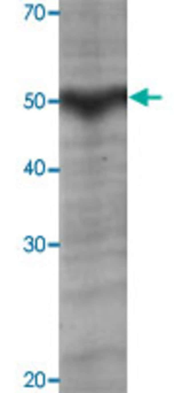 AbnovaHuman ADAMTS5 amino acids 625-930 deleted Recombinant Protein with