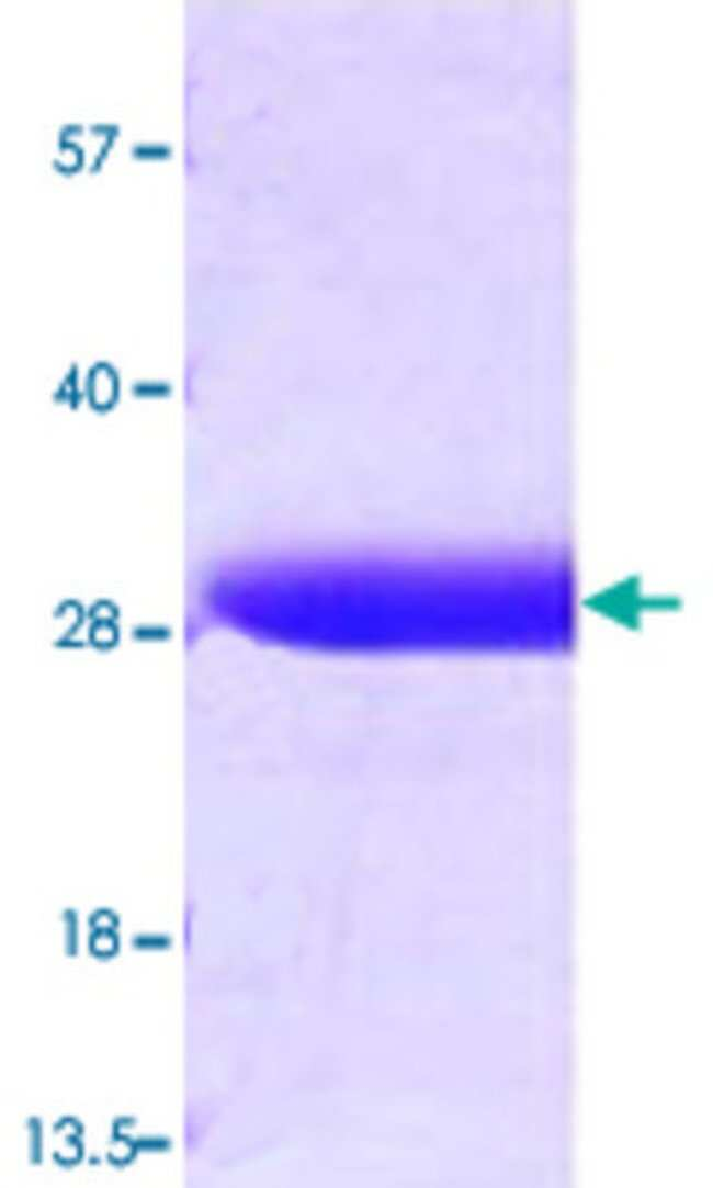 Abnova GST (Schistosoma japonicum) Recombinant Protein 100µg:Life