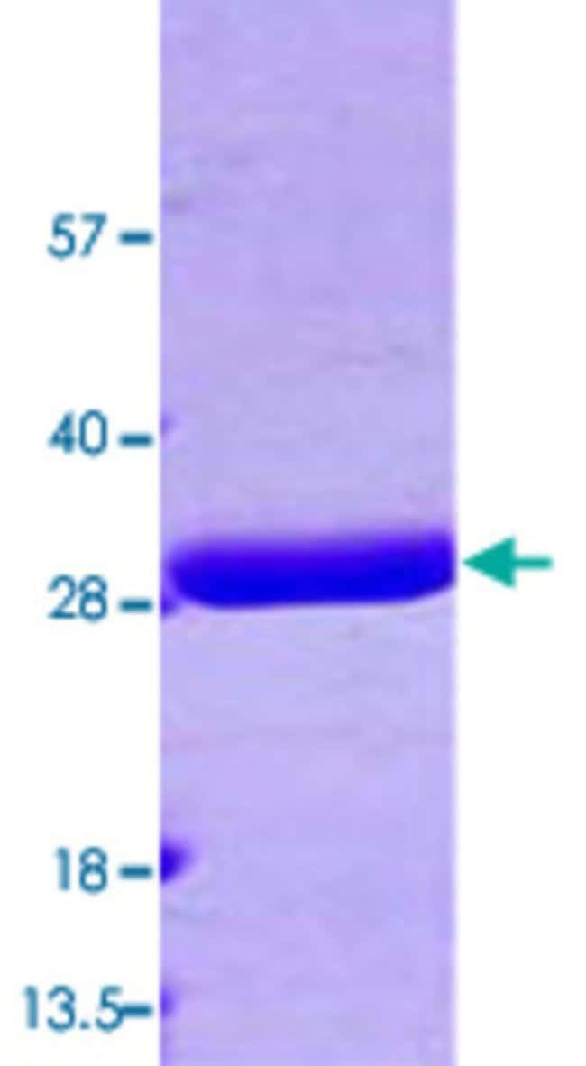 Abnova grxB (Escherichia coli) Recombinant Protein 100µg:Life Sciences