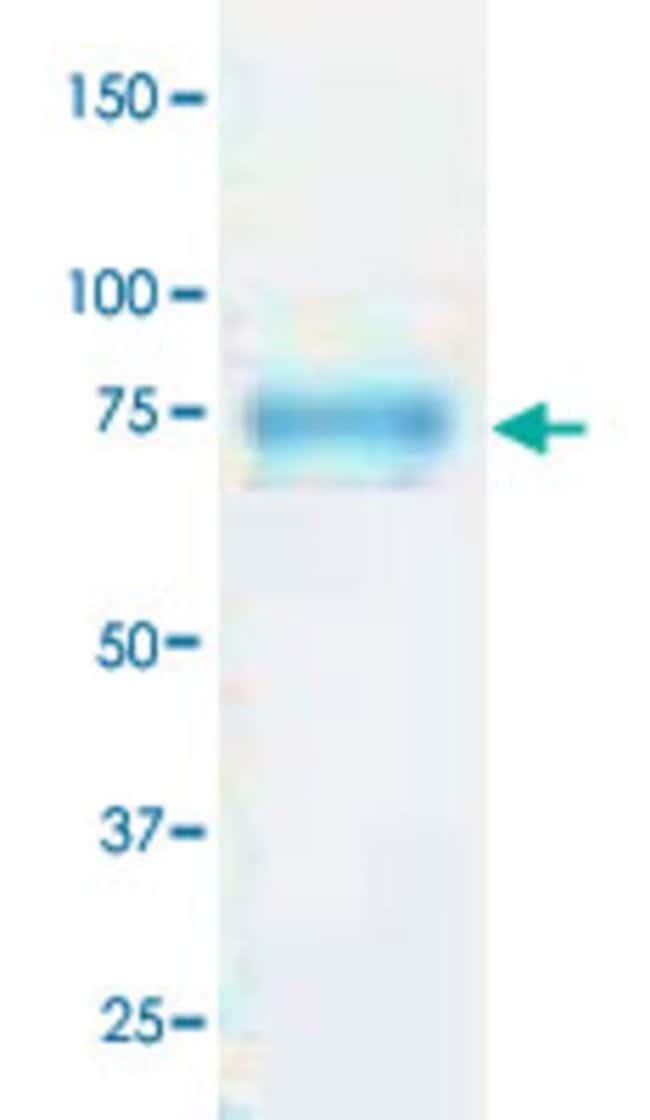 Abnova H5 (H5N1) (A/Anhui/1/2005) (ABD28180, 18 a.a. - 530 a.a.) Partial