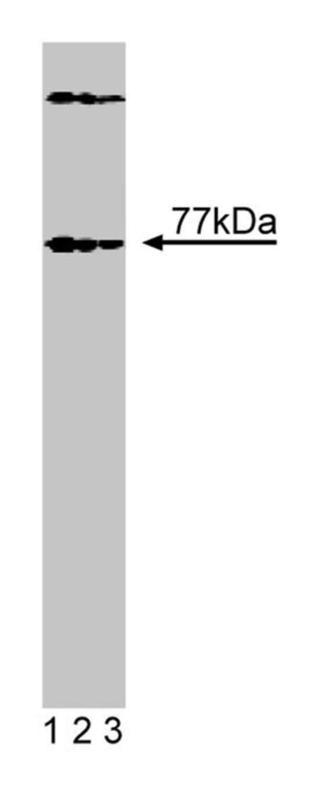 Btk Mouse anti-Human, Unlabeled, Clone: 53/BTK, BD 50µg; Unlabeled:Life