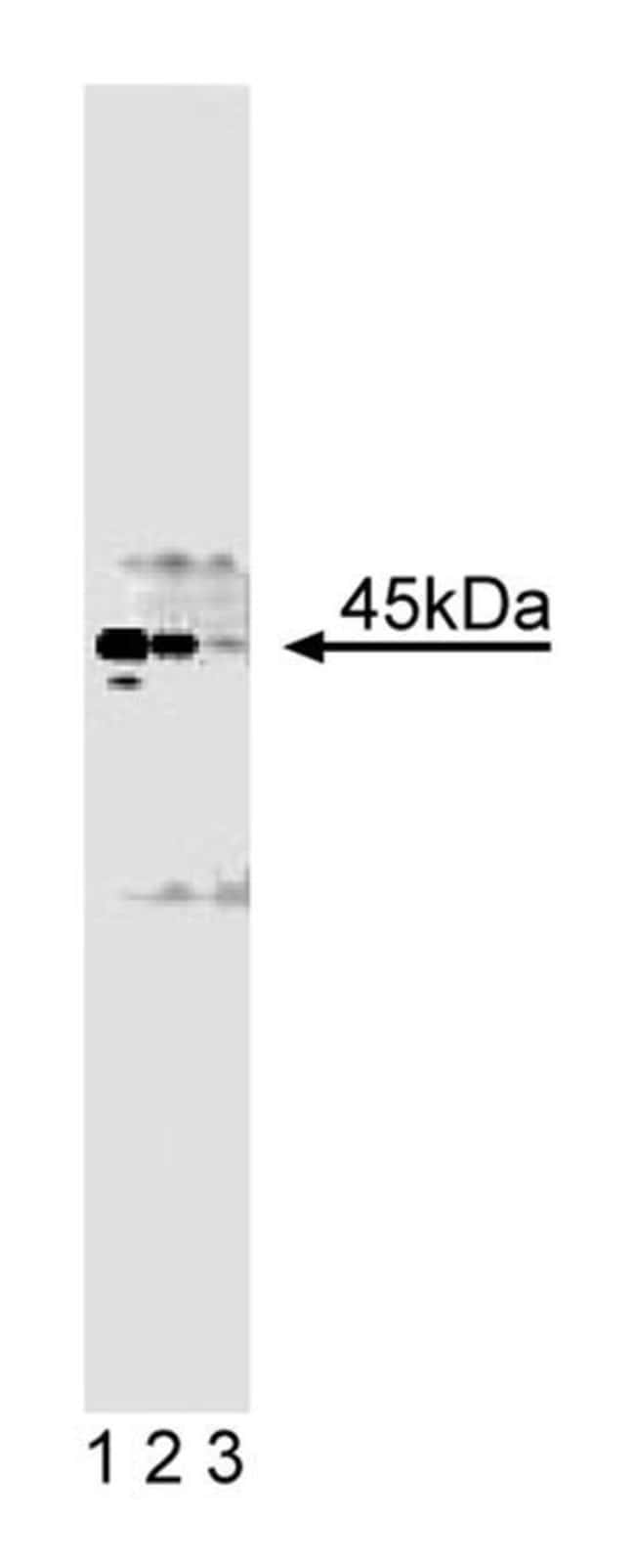 Casein Kinase II/ Mouse, Unlabeled, Clone: 31, BD 50µg; Unlabeled:Life