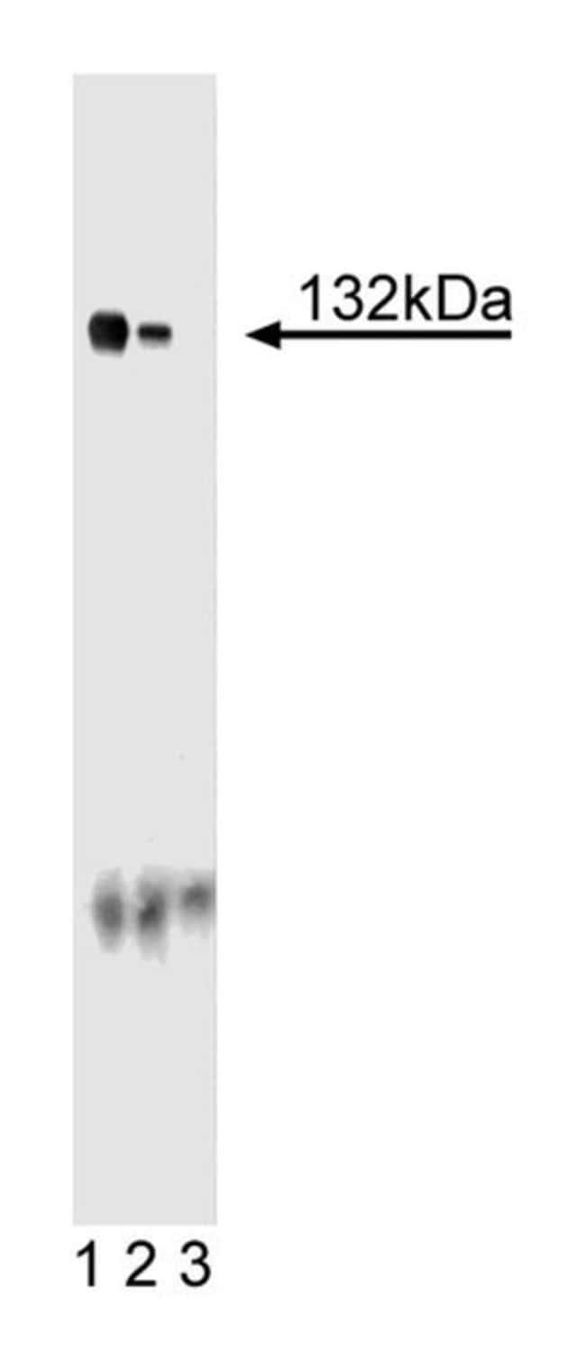 Ceruloplasmin Mouse, Unlabeled, Clone: 8, BD 150μg; Unlabeled:Antibodies