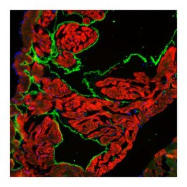 Cardiac Troponin T Mouse, Alexa Fluor 647, Clone: 13-11, BD 50µg;