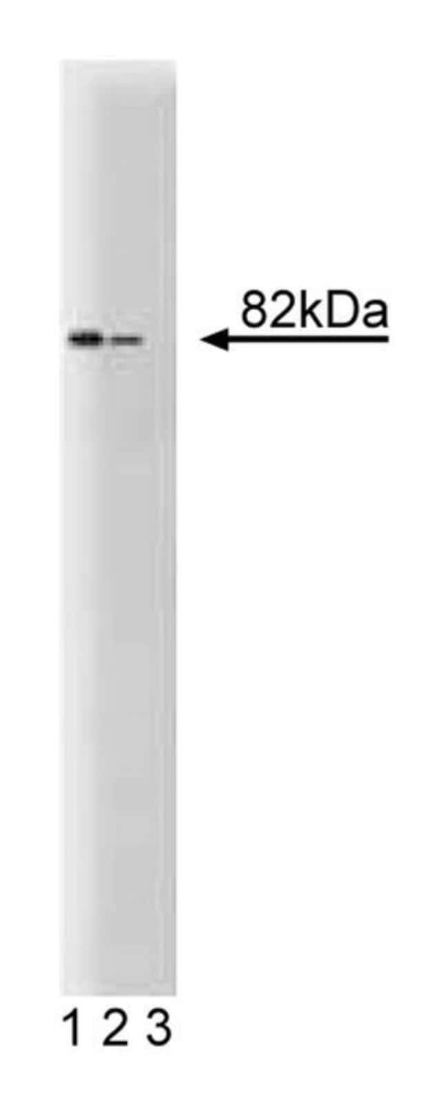 DDX1 Mouse anti-Human, Unlabeled, Clone: 22, BD 150μg; Unlabeled:Antibodies