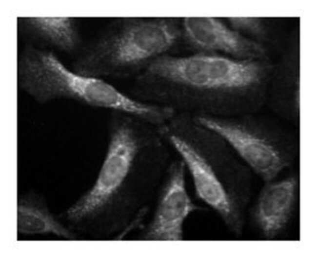 Laminin B2 Mouse, Unlabeled, Clone: 22, BD 50μg; Unlabeled:Antibodies
