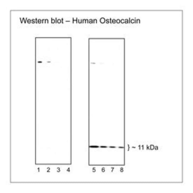 Osteocalcin Mouse anti-Human, PE, Clone: R14-707, BD 50 Tests; PE:Life