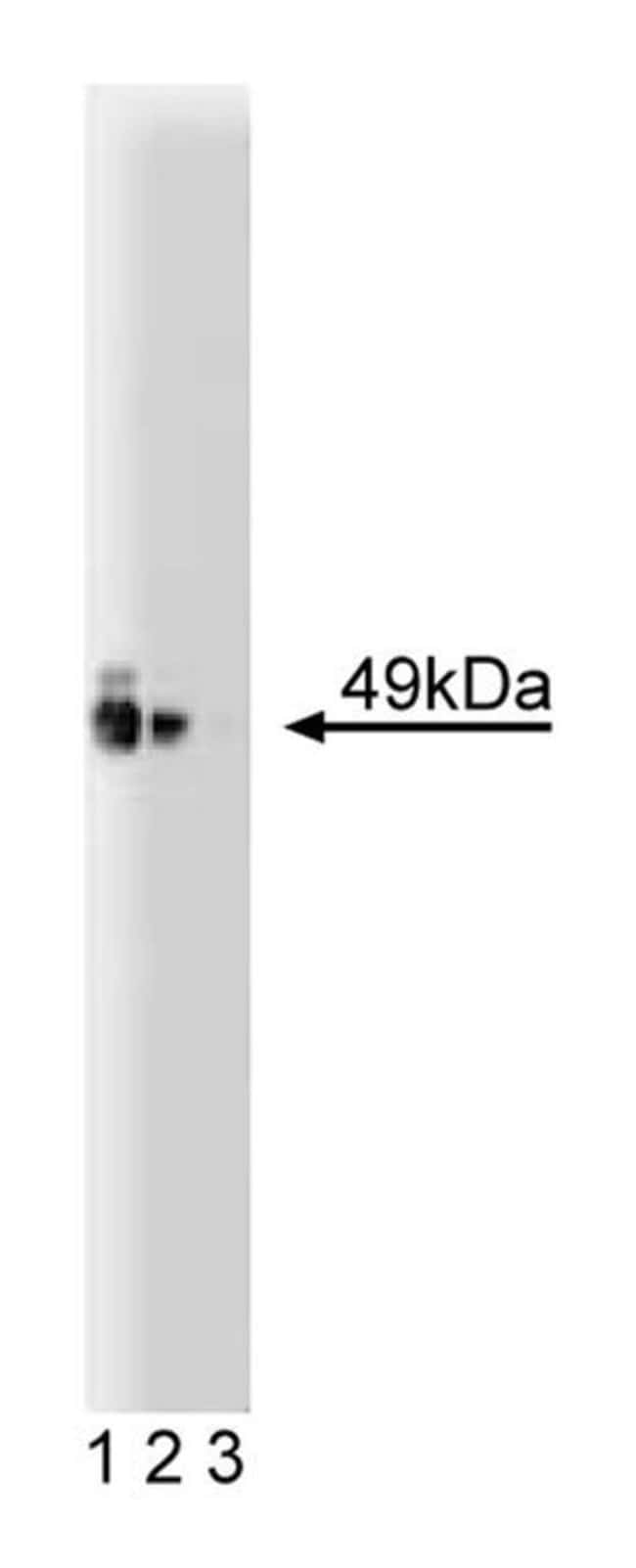 PKA(RI) Mouse, Unlabeled, Clone: 20, BD 50µg; Unlabeled:Life Sciences