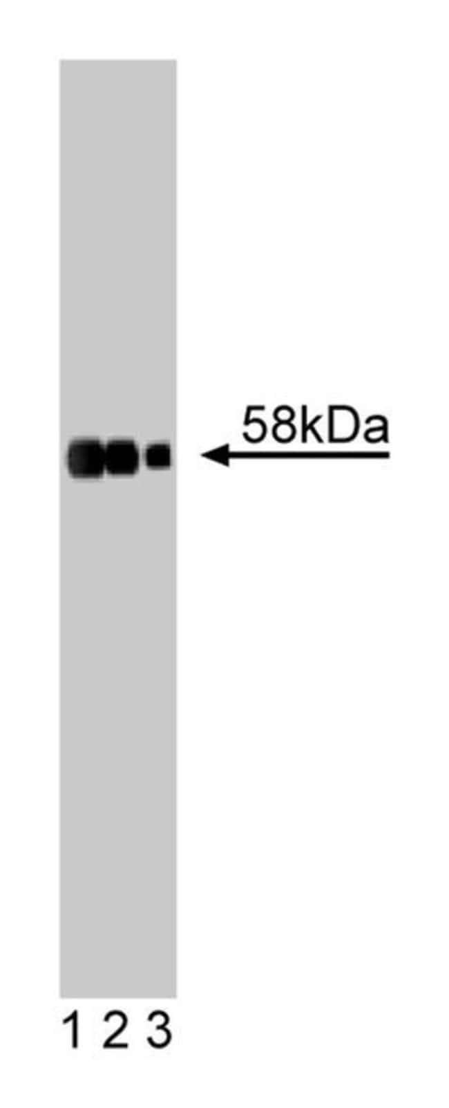 Tyrosine Hydroxylase Mouse, Unlabeled, Clone: 45, BD 50µg; Unlabeled:Life