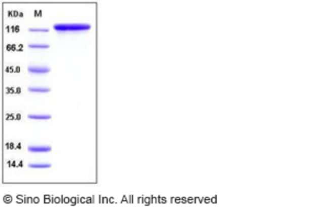 Sino Biological Human EGFR / HER1 / ErbB1 Protein (Fc Tag)  HUMAN EGFR,100UG