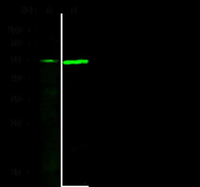 Sino Biological P53 Antibody, Rabbit PAb, Antigen Affinity Purified  P53