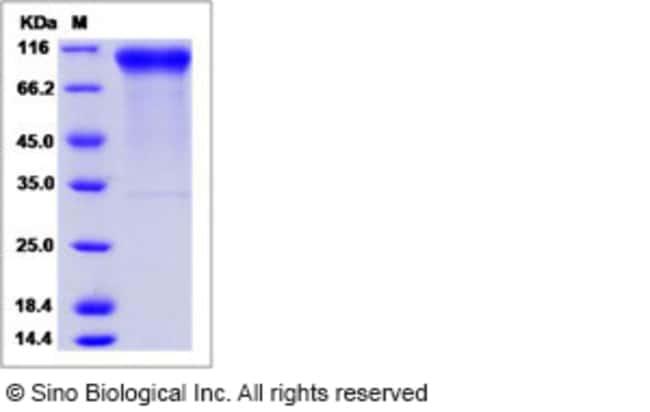 Sino Biological Human HER2 / ErbB2 Protein, Biotinylated  HUMAN ERBB2 (BIOTIN),20UG