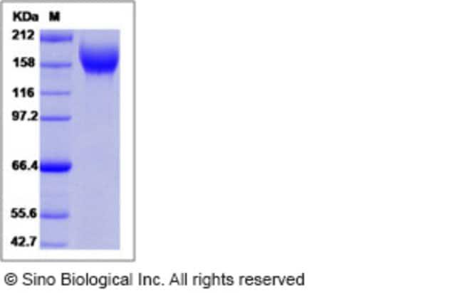 Sino Biological Human VEGFR2 / Flk-1 / CD309 / KDR Protein (Domain 2&3,