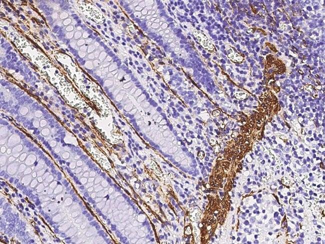 Sino Biological Actin (ACTA2)  Antibody, Rabbit PAb, Antigen Affinity Purified
