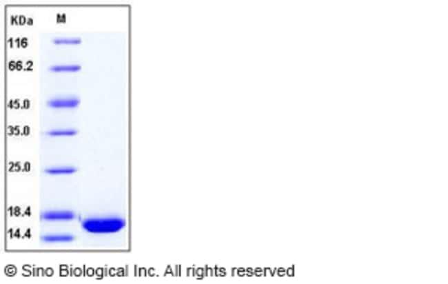 Sino Biological Human bFGF / FGF2 Protein  HUMAN BFGF/FGF2,1MG