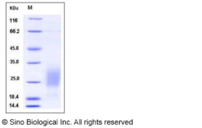 Sino Biological Human GM-CSF / CSF2 Protein (His Tag)  HUMAN GM-CSF/CSF2,500UG