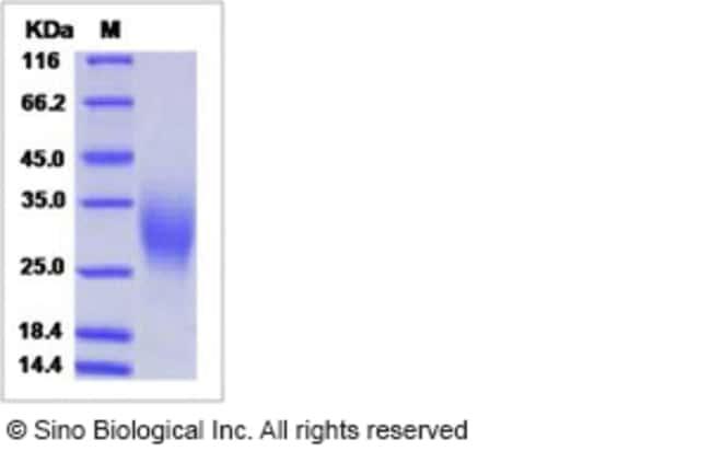 Sino Biological Human GM-CSF / CSF2 Protein  HUMAN GM-CSF/CSF2,100UG