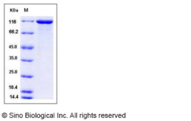 Sino Biological Human VCL / Vinculin Protein (His Tag)  HUMAN VCL/VINCULIN,50UG