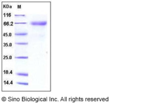 Sino Biological Human IL12A / NKSF1 Protein (Fc Tag)  HUMAN IL12A/NKSF1,20UG