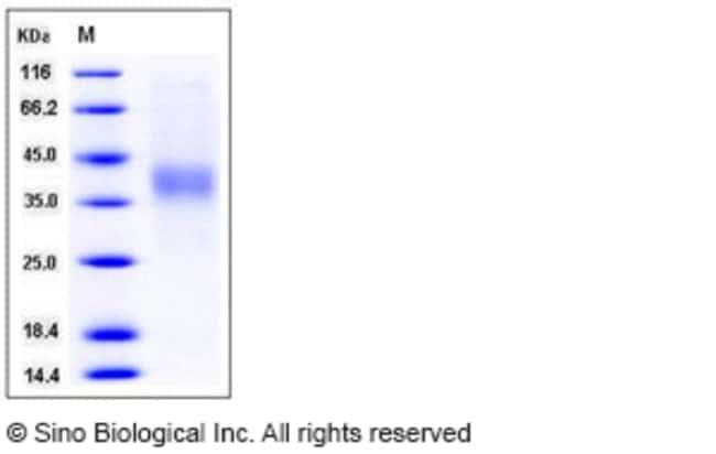 Sino Biological Human IL12A / NKSF1 Protein (His Tag)  HUMAN IL12A/NKSF1,500UG