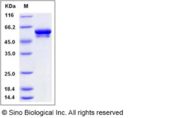Sino Biological Human Vimentin / VIM Protein (His Tag)  HUMAN VIMENTIN/VIM,50UG