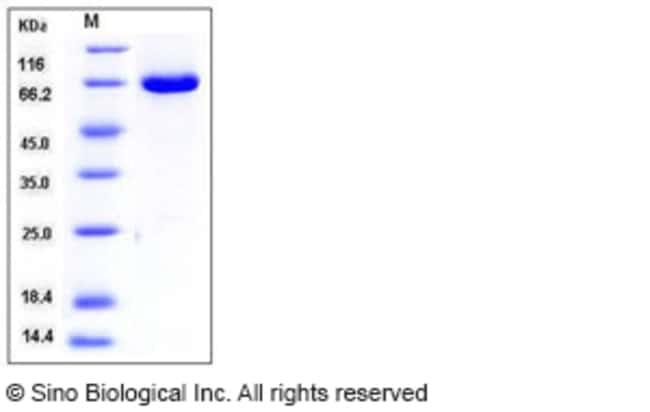 Sino Biological Human ERK2 / MAPK1 / MAPK2 Protein (GST Tag)  HUMAN ERK2/MAPK1/MAPK2,50UG