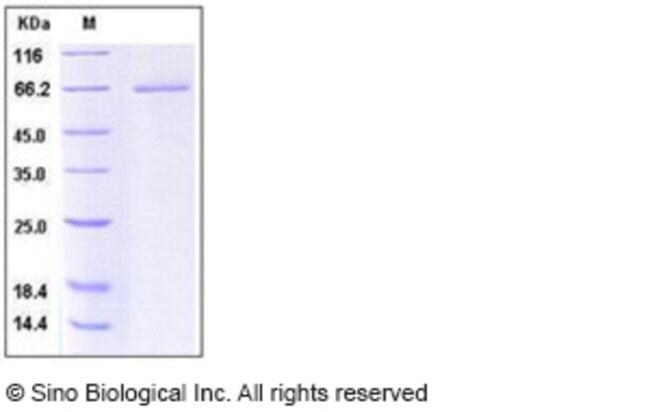 Sino Biological Human CD27 / TNFRSF7 Protein (His & Fc Tag)  HUMAN CD27/TNFRSF7,100UG