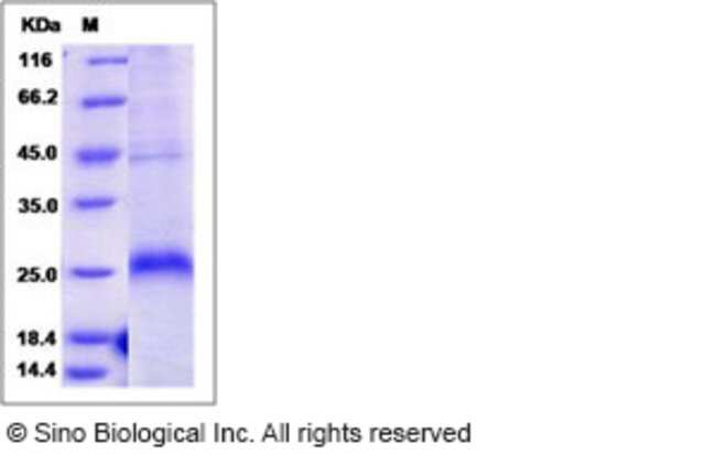 Sino Biological Human CD27 / TNFRSF7 Protein (His Tag)  HUMAN CD27/TNFRSF7,200UG