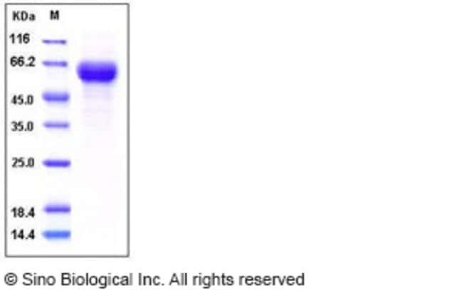 Sino Biological Human CD153 / CD30L / TNFSF8  Protein (Fc Tag)  HUMAN CD153/CD30L/TNFSF8