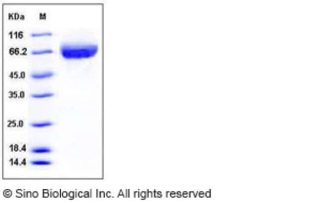 Sino Biological Human ALCAM / CD166 Protein (His Tag)  HUMAN ALCAM/CD166,200UG