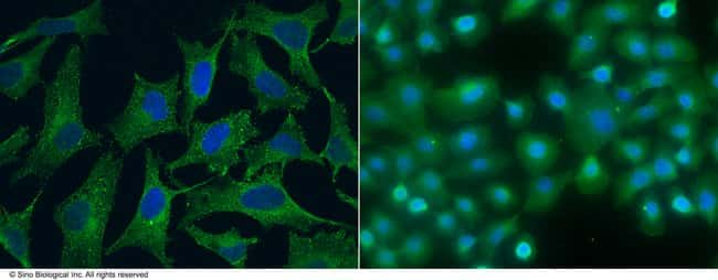 Sino Biological SPARCL1 / SPARC-like 1 Antibody, Mouse MAb  SPARCL1 ANTIBODY,100UL