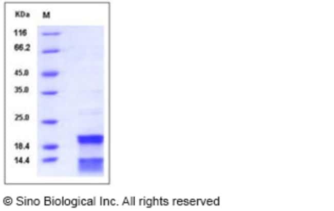 Sino Biological Human CASP7 / caspase 7 / MCH3 Protein (His Tag)  HUMAN