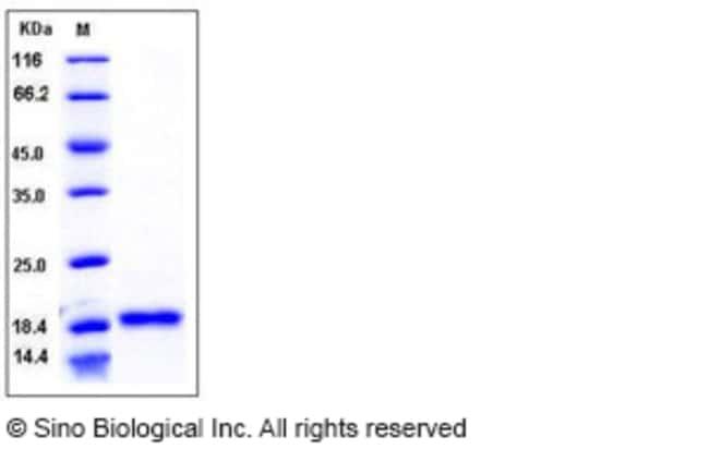 Sino Biological Human BLyS / TNFSF13B / BAFF Protein  HUMAN BLYS/TNFSF13B,1MG
