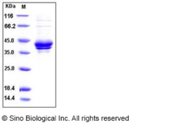 Sino Biological Human I-309 / CCL1 / TCA-3 Protein (Fc Tag)  HUMAN I-309/CCL1/TCA-3,20UG