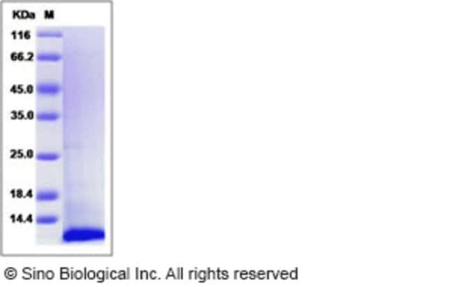 Sino Biological Human I-309 / CCL1 / TCA-3 Protein  HUMAN I-309/CCL1/TCA-3,10UG