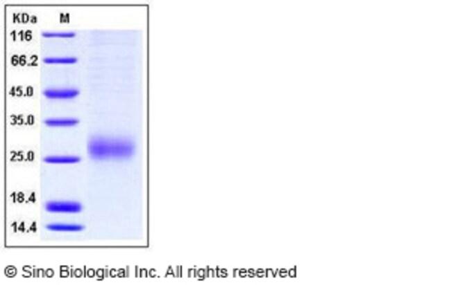 Sino Biological Human ALK-1 / ACVRL1 Protein (His Tag)  HUMAN ALK-1/ACVRL1,200UG