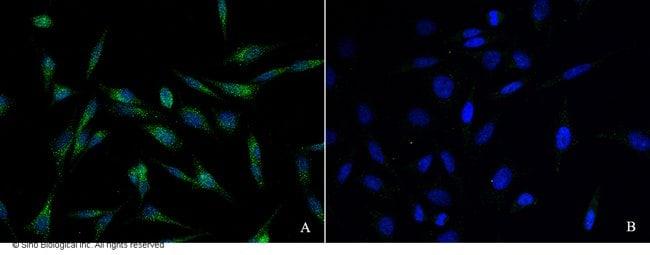Sino Biological BRCA1 Antibody, Rabbit PAb, Antigen Affinity Purified