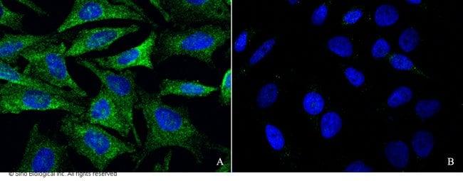 Sino Biological GRIK2 Antibody, Rabbit PAb, Antigen Affinity Purified