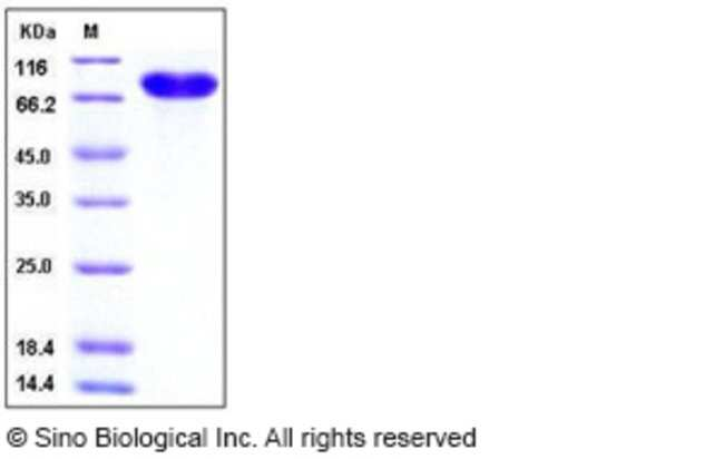Sino Biological Human CD14 Protein (Fc Tag)  HUMAN CD14,50UG