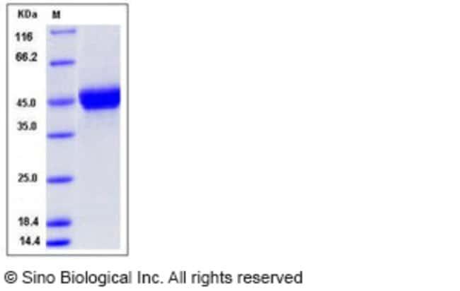 Sino Biological Human CD14 Protein (His Tag)  HUMAN CD14,50UG