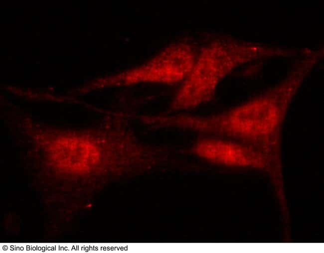 Sino Biological HDAC4 Antibody, Rabbit PAb, Antigen Affinity Purified