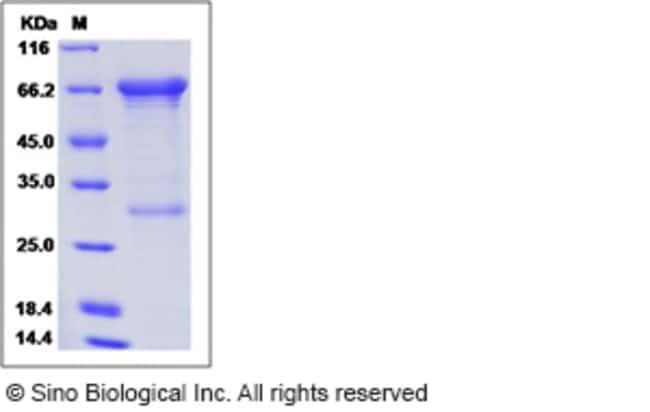 Sino Biological Human MMP-2 / CLG4A Protein  HUMAN MMP-2/CLG4A,50UG