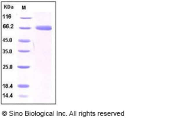 Sino Biological Human PD-L1 / B7-H1 / CD274 Protein (Fc Tag)  HUMAN PD-L1,100UG