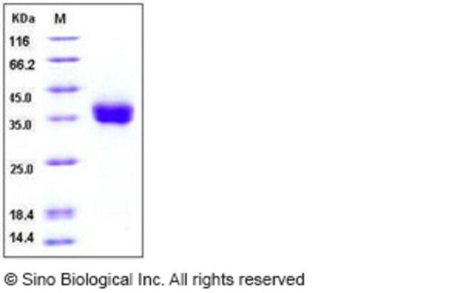 Sino Biological Human PD-L1 / B7-H1 / CD274 Protein (His Tag) , Biotinylated
