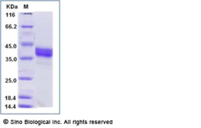 Sino Biological Human PD-L1 / B7-H1 / CD274 Protein  HUMAN PD-L1,100UG