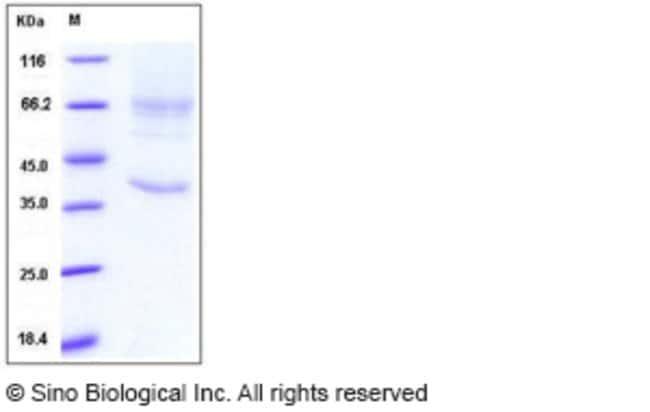 Sino Biological Human Glypican 3 / GPC3 / OCI-5 Protein (His Tag)  HUMAN