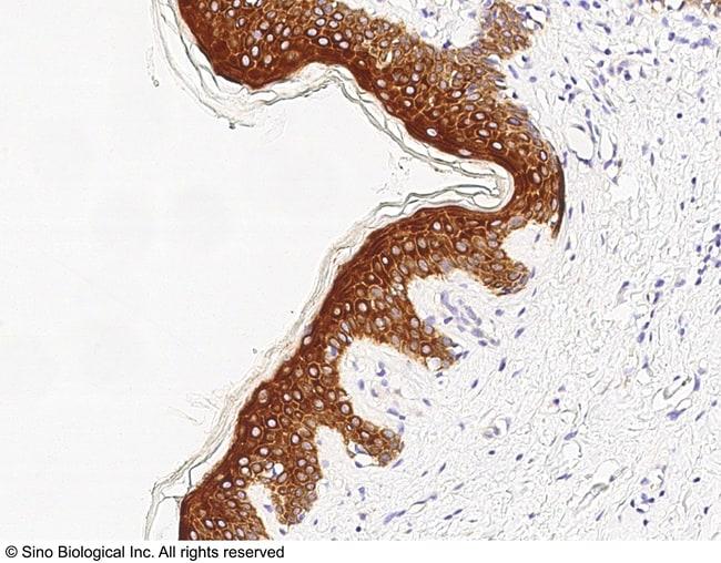 Sino Biological FXR1 Antibody, Rabbit PAb, Antigen Affinity Purified  FXR1